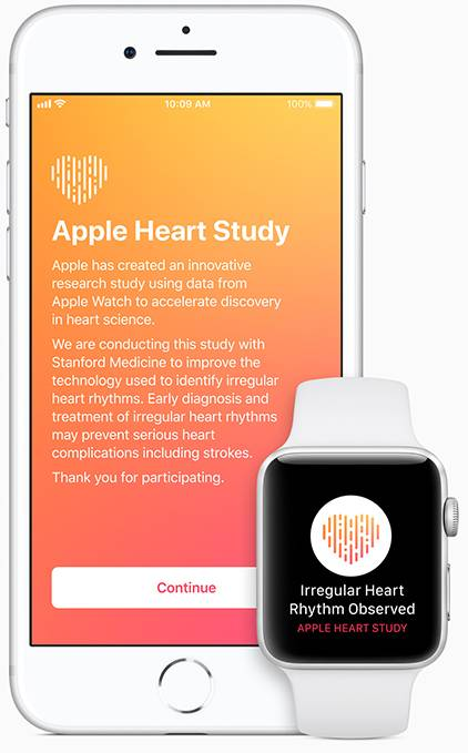 Apple Heart Study
